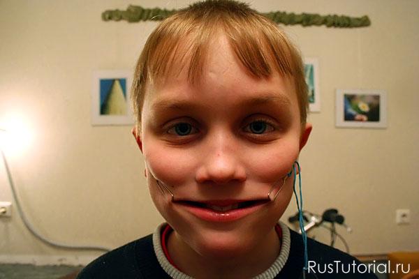Так выглядит применение хохотьюна - устройства для вечной улыбки на лице